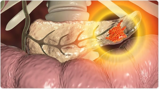New drug combo may improve pancreatic cancer therapy